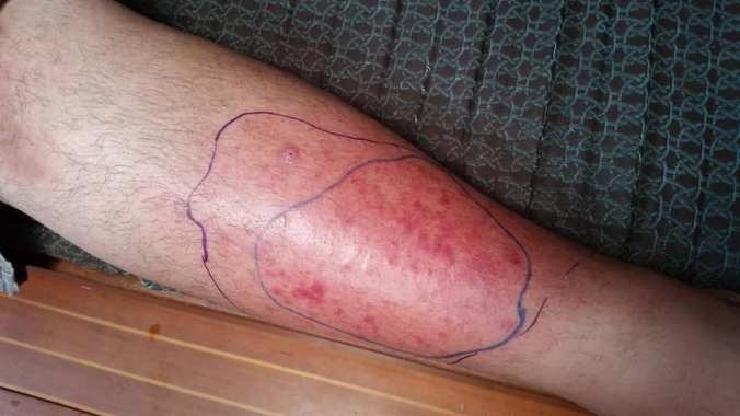 A man's leg with a painful red infection on the shin